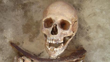 bones5